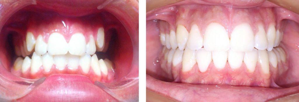 caso-ortodoncia
