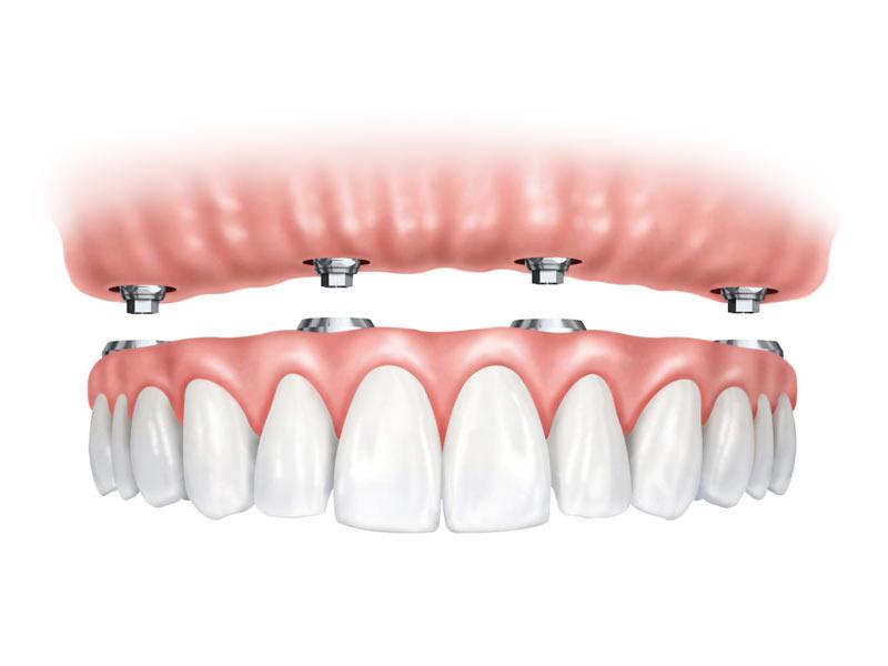 protesis-dentales-removibles